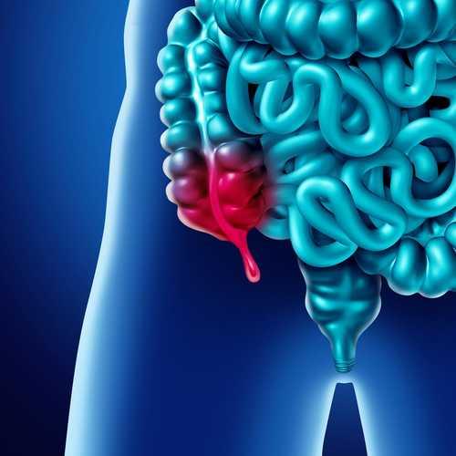 3 cara mudah mengobati usus buntu tanpa operasi