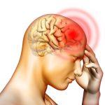 Waspada 4 makanan penyebab migrain