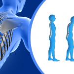 Pengobatan sederhana osteoporosis ala Agarillus