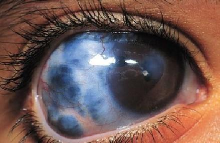 2 cara mudah sembuhkan glaukoma