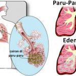 4 herbal yang mampu mengobati edema paru