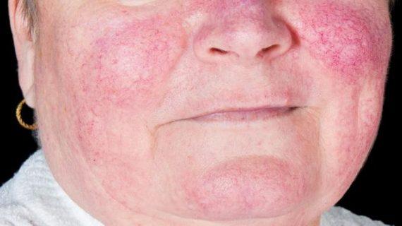 5 faktor lingkungan penyebab penyakit lupus