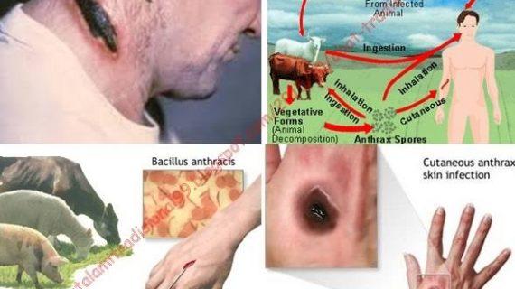 Lawan bakteri antraks dengan pengobatan alami