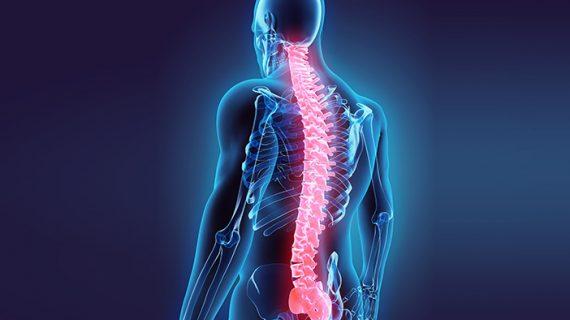 Multiple Sclerosis penyakit yang misterius, Agarillus solusinya